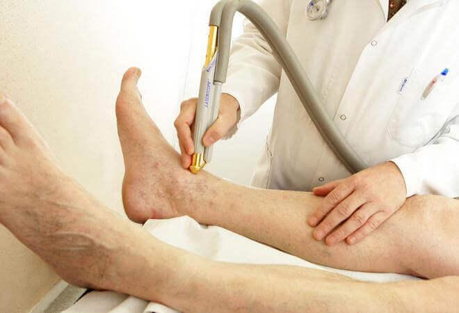 Симптоми і лікування ішемії нижніх кінцівок