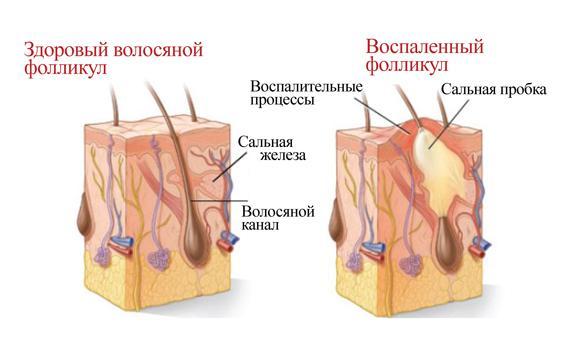 Запалення волосяного фолікула